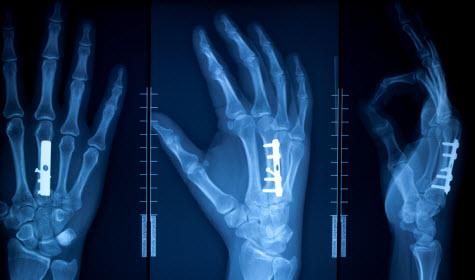 Orthopedic Nurse Orthopedic Nursing Orthopeadic Nurse
